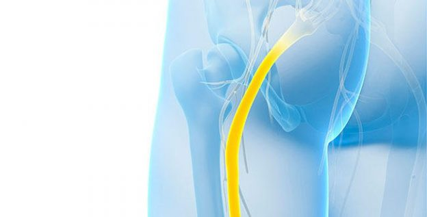 How to deal with sciatic nerve pain
