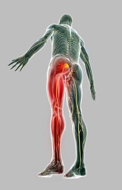 Identifying the symptoms of sciatica