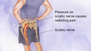 poor movement habits can cause sciatica