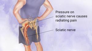poor movement habits can cause sciatica